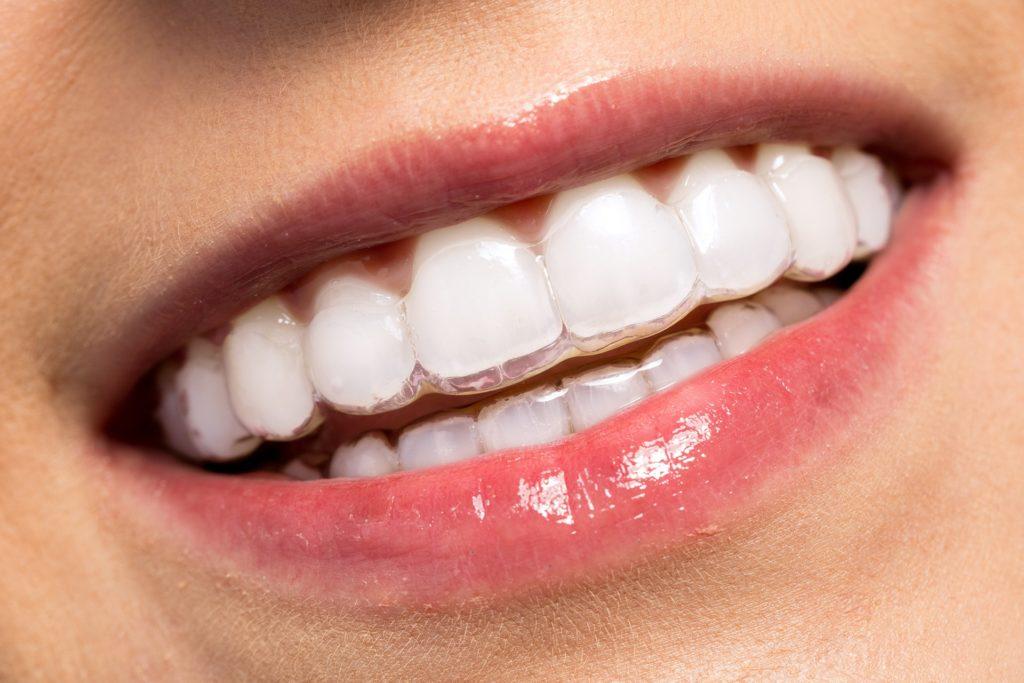 wybielanie zębów nakładkowe