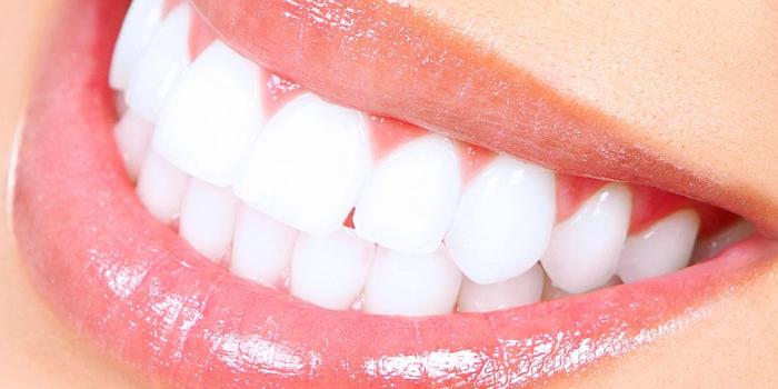 Ile kosztuje wybielanie zębów